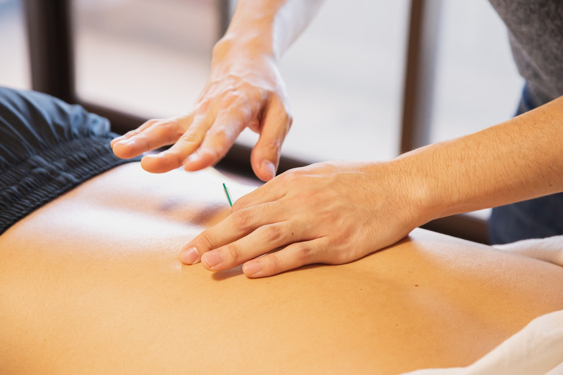 Why You Should Totally Consider Trying Acupunture – Surprising Benefits